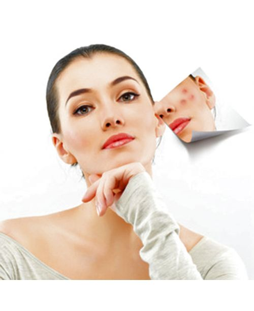 Soin anti-acné aux HE